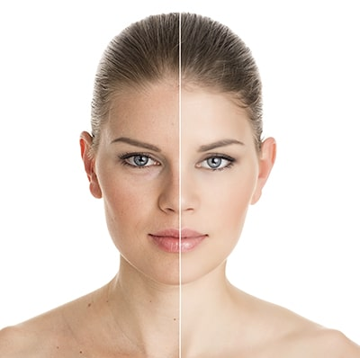 Fillers & Injectables | PDX ENT